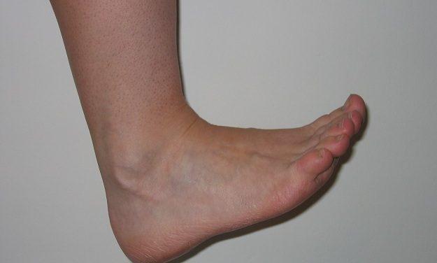 Achilles' Heel, Jared's Neuroma